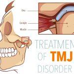 Reflexology for TMJ