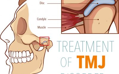Reflexology for TMJ