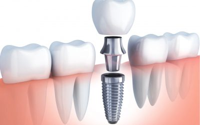 Worry about the dental implant procedure pain?