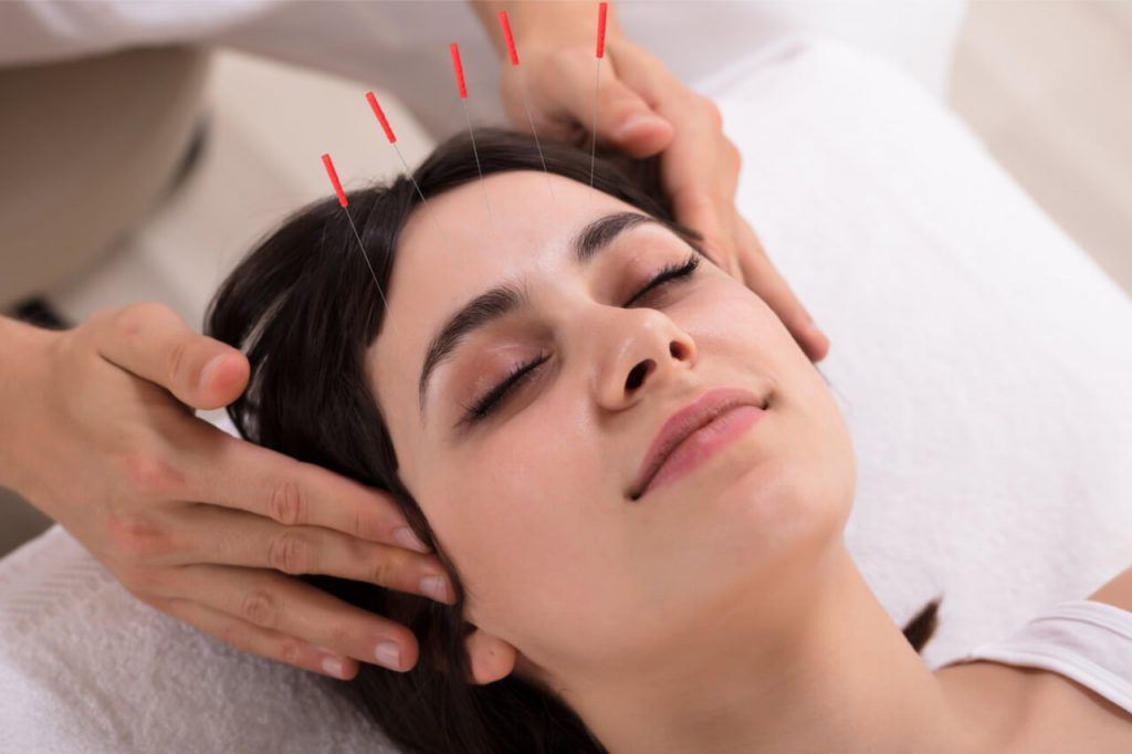 Using acupuncture for headache